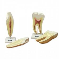 HCG alta sensibilidad - 10 mlu/ml 30 placas orina y suero